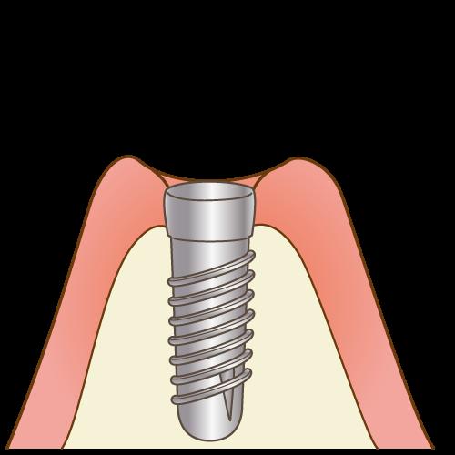 インプラント治療の流れ3